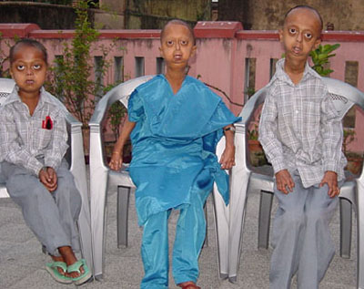 Lamin a rare, fatalhutchinson-gilford progeria arab genomic studiesa